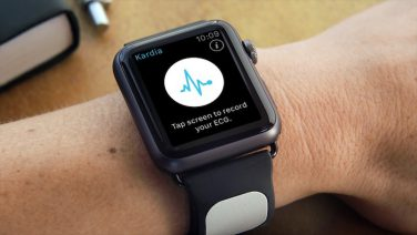 Kardia Band per monitorare il battito cardiaco con Apple Watch